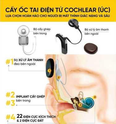 Lợi ích của điện cực ốc tai Cochlear