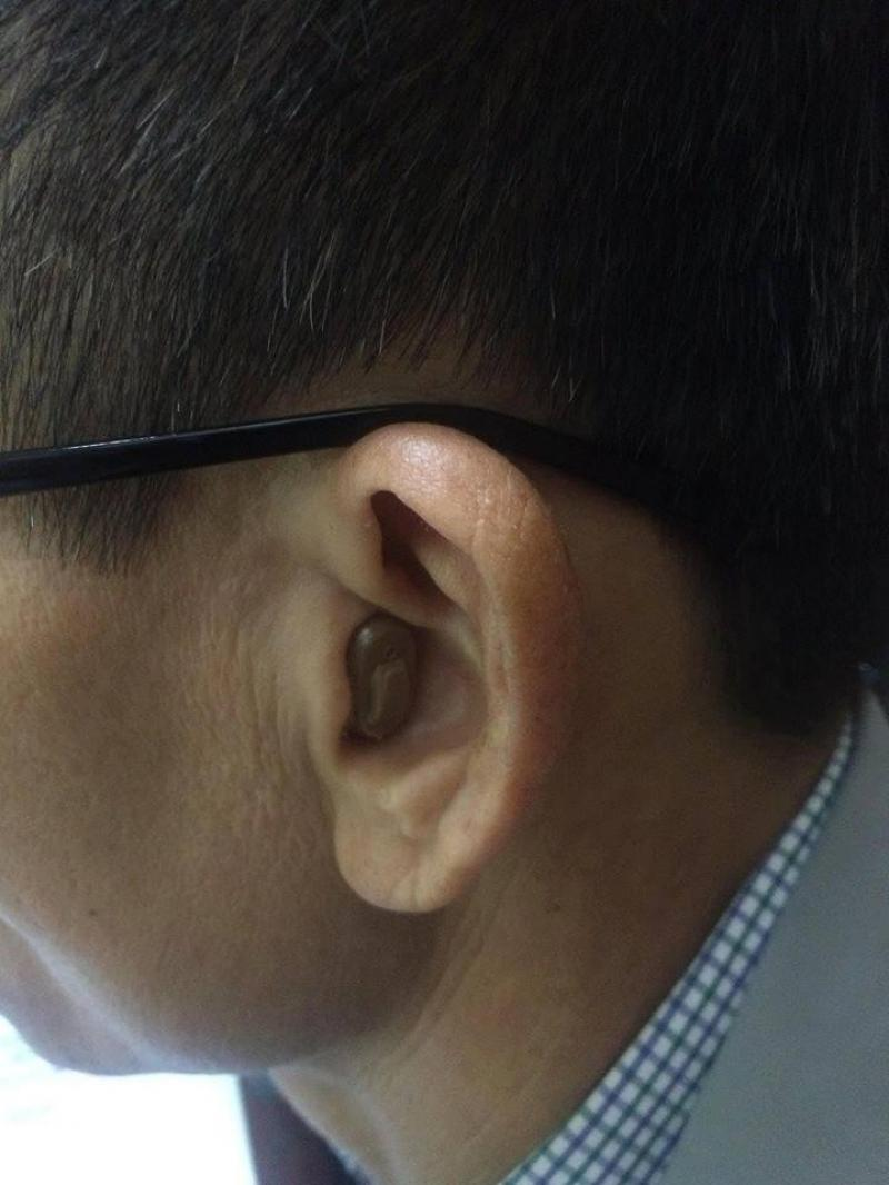 Máy trợ thính nhỏ bí mật trong tai