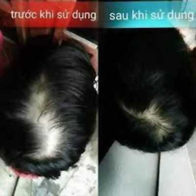 Xịt tóc Nelly.p kích thích mọc tóc và ngăn ngừa rụng tóc